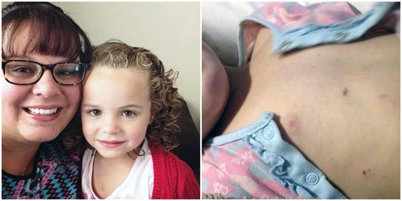 3-årige datter klagede over at have det dårligt og ondt i benene - Lægen opdagede den barske sandhed