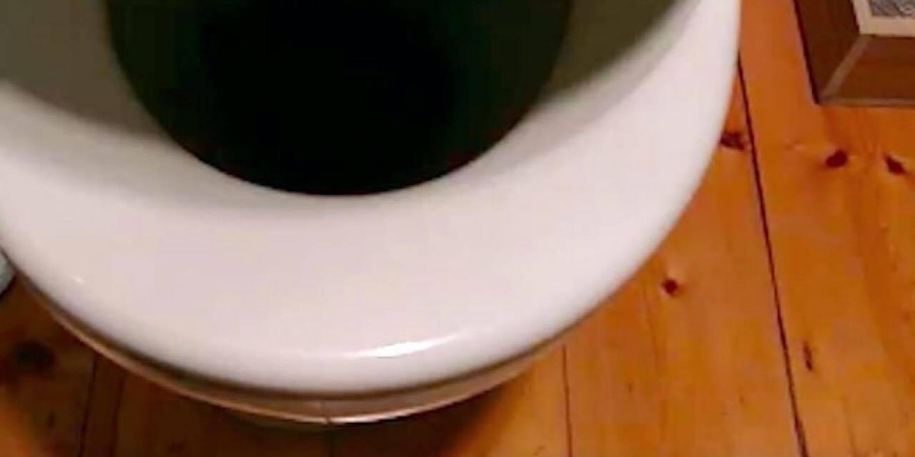 Familie fik sig et kæmpe chok da de kiggede ned i toilettet: behåret ubuden gæst sad fast i kummen