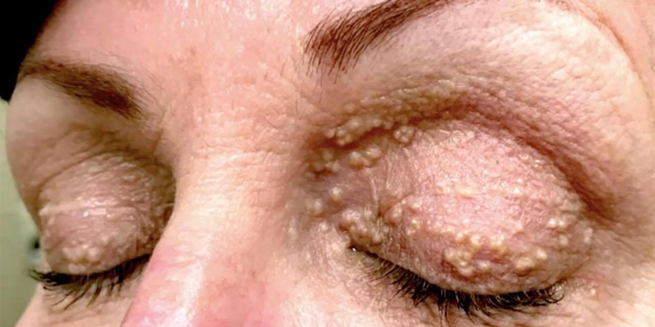 Lægerne chokeres: ''hendes øjenlåg bevæger sig!''