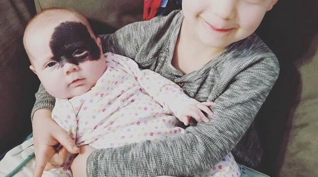 Hun blev født med et kæmpe modermærke i ansigtet - Nu har forældrene gjort hende til en superhelt