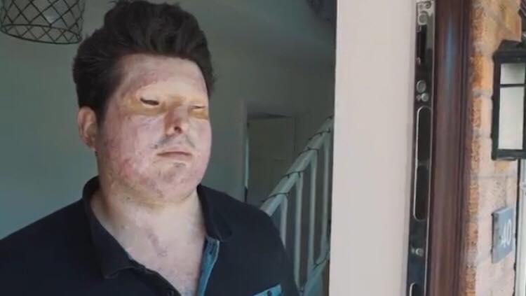 Han åbner døren for at modtage en pakke fra posten - hvad der så skete ødelagde hans liv