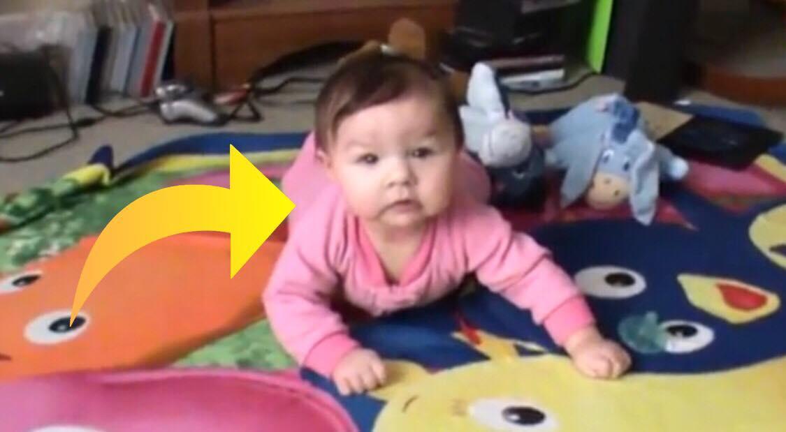 Nyfødt lille pige fødes med yderst sjælden sygdom - Hendes chokerende behov har overrasket hele verden